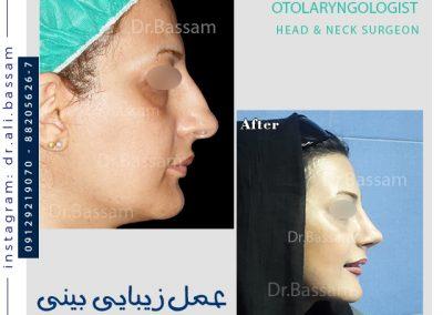 جراحی بینی دکتر بصام