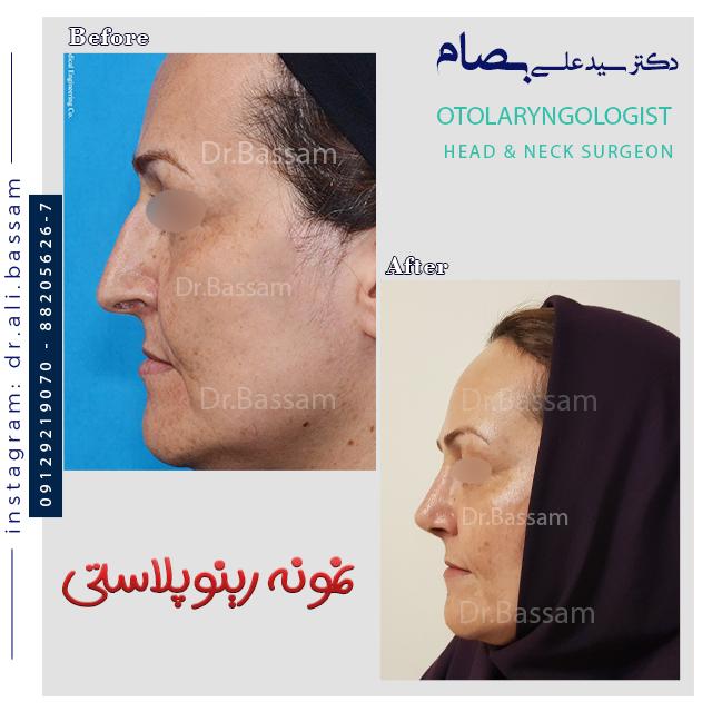 جراحی بینی در سنین بالا