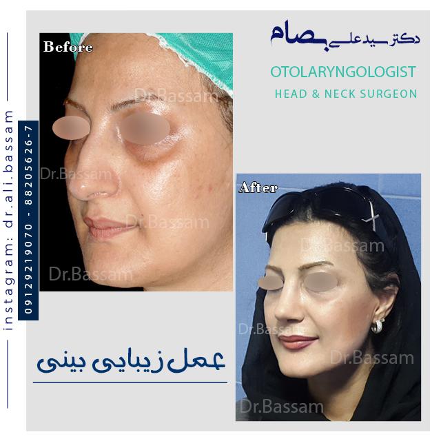 قبل و بعد جراحی بینی طبیعی