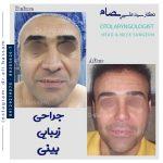 عمل بینی مردانه دکتر علی بصام