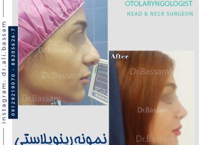 عکس عمل بینی