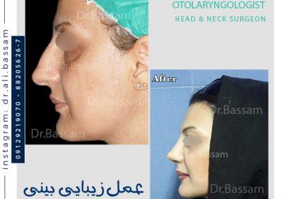 نمونه کار جراحی بینی دکتر بصام