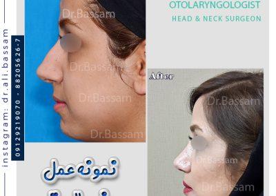 نمونه کار جراحی بینی طبیعی زنانه دکتر بصام