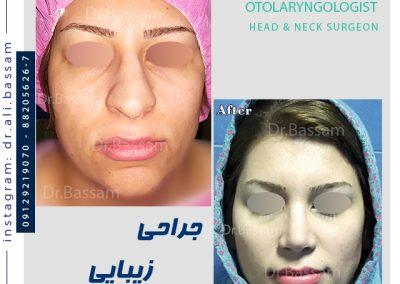 نمونه کار عمل بینی دکتر بصام