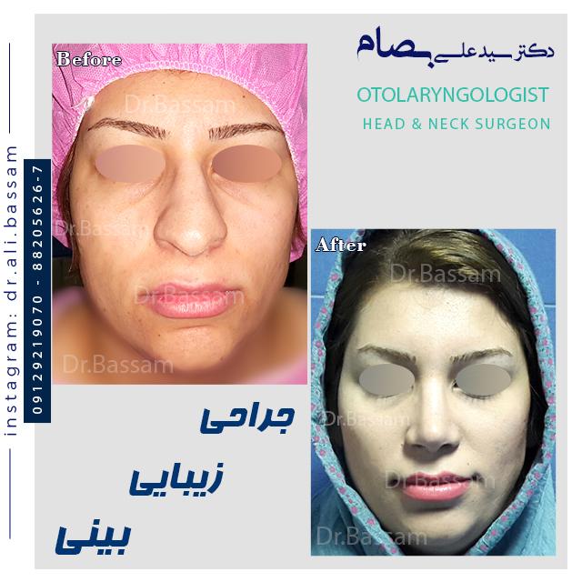 قبل و بعد جراحی بینی گوشتی