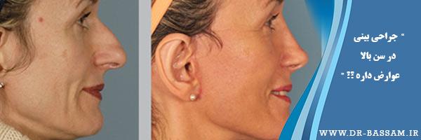 جراحی بینی در چهل سالگی