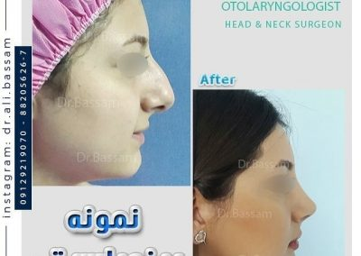cost nose job in iran