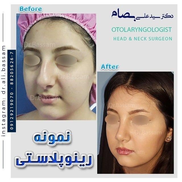 عمل طبیعی بینی زنانه