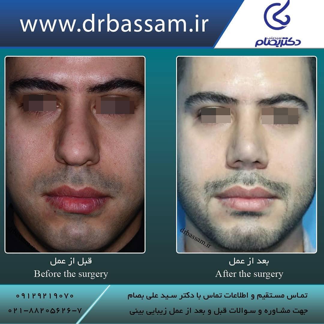 مدل بینی عملی مردانه