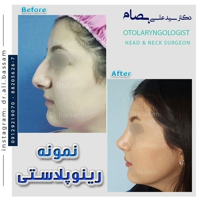 نمونه جراحی بینی طبیعی