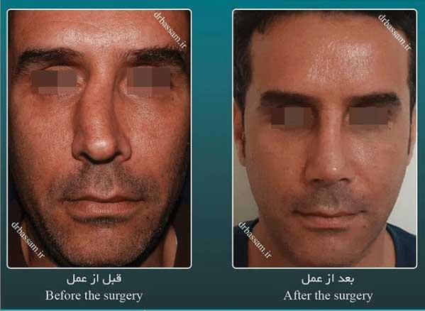 جراحی بینی مردانه استخوانی