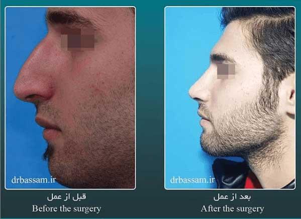 جراحی بینی مردانه خیلی طبیعی