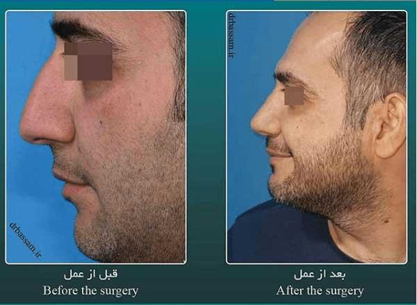 عمل بینی مردانه طبیعی