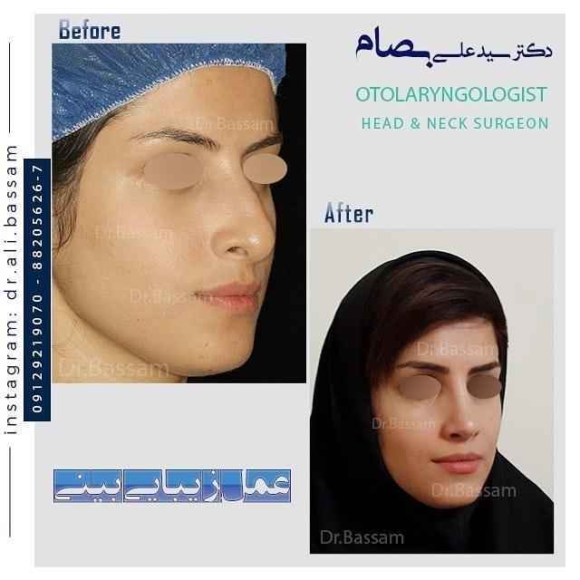 نمونه عمل بینی استخوانی سه رخ
