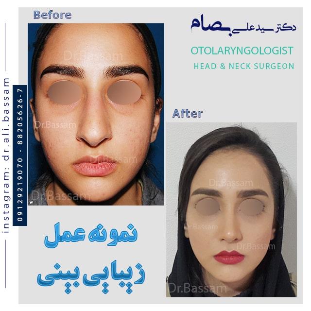 نمونه تمام رخ جراحی بینی گوشتی