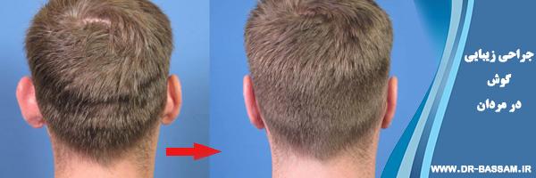 جراحی زیبایی گوش در مردان