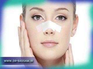 چسب زدن بینی بعد از عمل