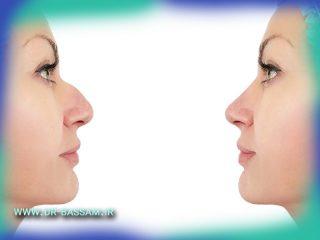 تغییر متحیر کننده چهره بعد از جراحی بینی