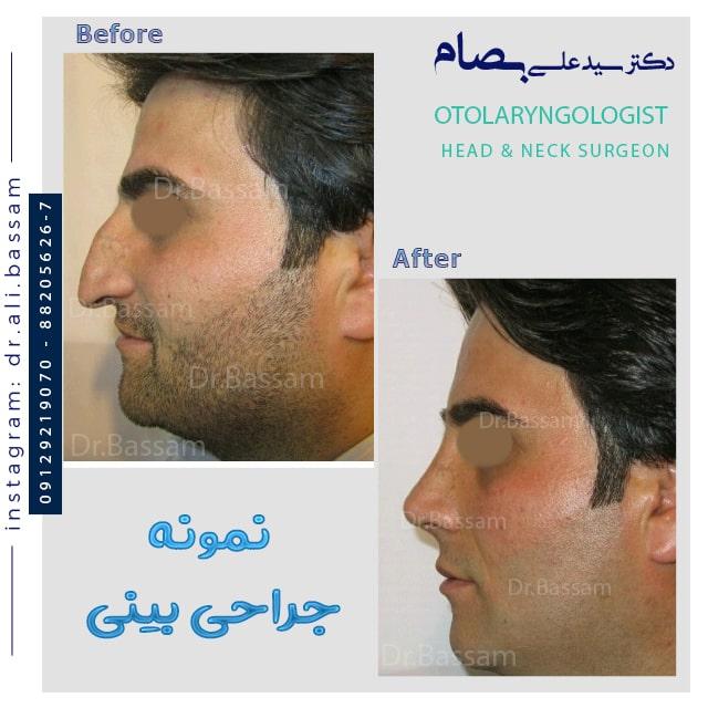 جراحی بینی مردانه استخوانی و اصلاح قوز و افتادگی
