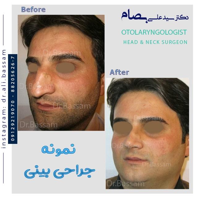 جراحی قوز شدید بینی مردانه