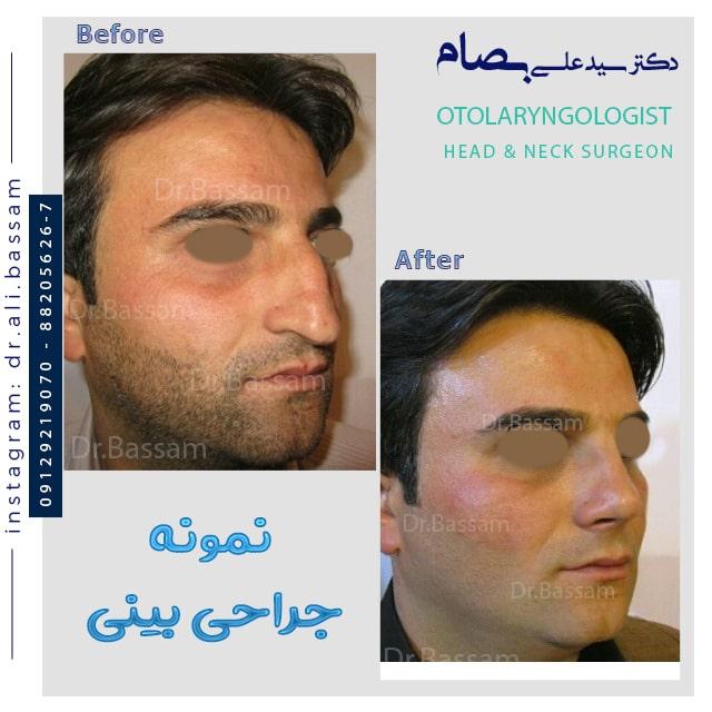 قبل و بعد از جراحی بینی شکسته