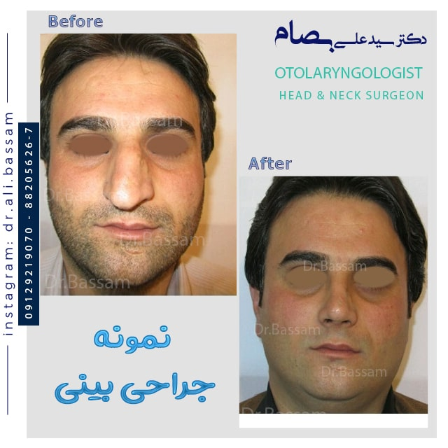 جراحی انحراف شدید بینی نمونه کار