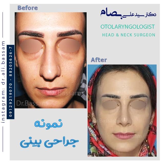 عکس قبل و بعد از جراحی بینی بزرگ زنانه