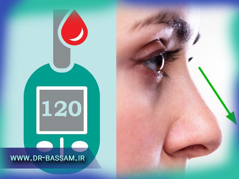 جراحی بینی برای بیماران دیابتی