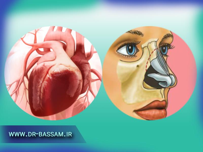 عمل بینی برای بیماران قلبی