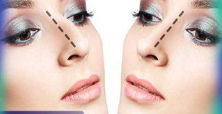 بینی طبیعی بعد از عمل